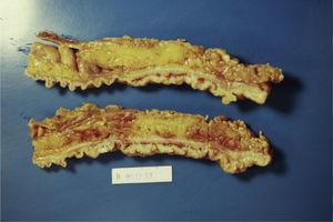 The resected rectosigmoid segment revealed lobulated and polypoid lesions involving full of the circumference.