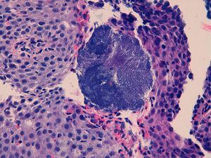 Oesophageal epithelium with eosinophilic infiltrate and surface colonies of Actinomyces.