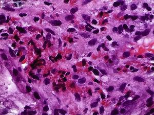 Pathology image of the duodenal bulb mucosa with more than 100 eosinophils per high-power field (HPF).