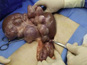Surgical procedure. Segment of the jejunum with multiple diverticula on the mesenteric border and signs of ischaemia secondary to an adhesion (arrow).