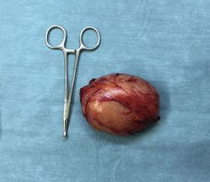 Encapsulated tumour with an elastic consistency.