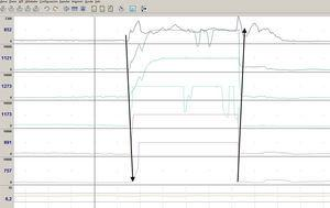 Example of a pH-impedance trace showing a supragastric belch, identified as a rapid rise in impedance (≥1000Ω), moving distally, followed by a return to baseline, moving proximally. Supragastric belches less than 5s apart were considered a single episode.