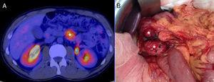 (A) PET/CT image showing the duodenal lesion, marked with (*). (B) Intra-operative image showing two tumours in the third and fourth parts of the duodenum, marked with (*).