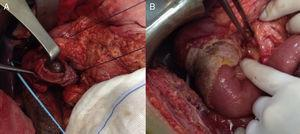 (A) Result after partial duodenectomy. (B) Reconstruction of the intestinal tract via duodenal-jejunal termino-terminal anastomosis and placement of a TachoSil® patch.