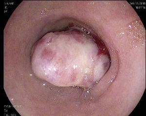 Tumour in the second part of the duodenum, of submucosal appearance, with an irregular and ulcerated surface.