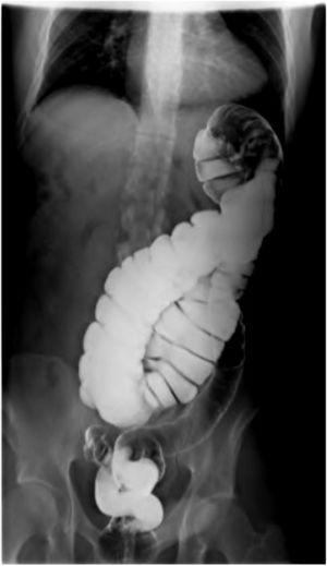 Barium enema showing the large bowel on the left side of the abdomen.
