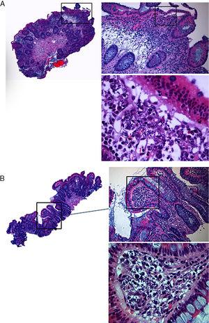 Histological showing small amastigotes structures of Leishmania spp, in the right colon mucosa (A) and in the terminal ileum (B).