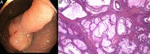 (A) Large pedunculated polyp (0-Ip) identified during endoscopic study. (B) Inflammatory myoglandular polyp composed of lobules of hyperplastic and dilated crypts, separated by bands of fibromuscular tissue, with granulation tissue (H&E 200×).