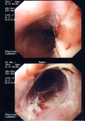 Upper gastrointestinal endoscopy. Mucosa in the entire oesophagus with widespread superficial ulceration, forming an erythematous and very friable base.