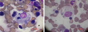 Two photos of the bone marrow aspirate of the patient number 3 are shown with blood elements being hemophagocytized.