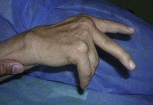 Patient with caput ulnae with impossibility for extension due to rupture of the extensor tendons of the 4th and 5th fingers.