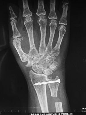 Radiological outcome of a distal radioulnar arthrodesis with proximal pseudoarthrosis of the ulna (Sauvé–Kapandji technique).