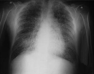 Chest X-ray with sand particles in both lung fields.