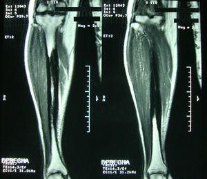 MRI of the right leg with coronal section in T2 where it can be seen a hypointense lesion in the diaphyseal region of the tibia that spares the cortical.