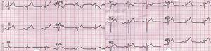 12-lead EKG. Concave elevation of the ST segment in the inferior and lateral leads. PR elevation in aVR.