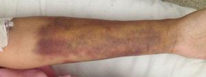 Left forearm with edema and ecchymosis.