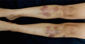 Violaceous nodules and ecchymosis in both tibiae.