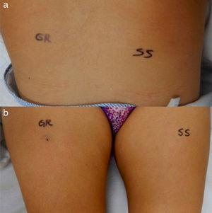 Intradermal sensitization test with washed autologous erythrocytes. (a) Scapulae. (b) Thighs. GR: autologous erythrocytes; SS: 0.9% saline solution.