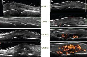 General procedure for the study. Echographic image of the second MCP joint. (A) Semi-quantitative score in grayscale. (B) Semi-quantitative score in Power Doppler.