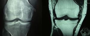 At the left side on the AP radiography of the knees is observed calcification of the medial collateral ligament in its proximal portion, in addition to a decrease in the medial femorotibial space. At the right side in the coronal acquisition with T1 information of the knee becomes evident an ossification in the proximal end of the medial collateral ligament, in relation with an old-injury, configuring a Pellegrini–Stieda lesion. Osteoarthritic changes with formation of marginal osteophytes in the medial compartment are also observed.