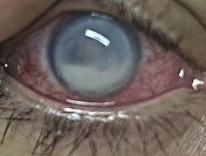 Initial manifestations: 360° limbal superficial vascularization, cornea with 360° peripheral melting, epithelial ulcer, severe generalized edema, fibrin hypopyon.