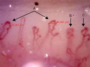 Capillaroscopy of the nail bed. A: giant capillaries; B: tortuous capillary; C: criss-crossed capillaries. The unidentified glue-like material affected the quality of the image by causing the reflection of light, and for this reason the images contain light reflections and dispersion.