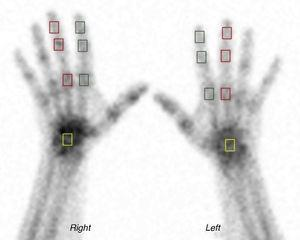 Areas of interest. Bone scintigraphy of the hands; in green squares, areas of interest on the interphalangeal and metacarpophalangeal joints of the second finger; in red squares, areas of interest on the interphalangeal and metacarpophalangeal joints of the third finger; in yellow squares, areas of interest on the carpus.