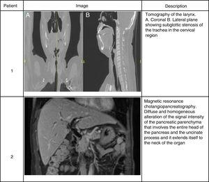 Imaging findings in 2 patients with IgG4-related disease. Patient 1. Tomography of the larynx. (A) Coronal plane. (B) Lateral plane showing subglottic stenosis of the trachea in the cervical region. Patient 2. Magnetic resonance cholangiopancreatography. Diffuse and homogeneous alteration of the signal intensity of the pancreatic parenchyma that involves the entire head of the pancreas and the uncinate process and it extends itself to the neck of the organ.