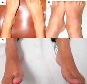 (A and B) AP view of the right foot, which shows an increase in volume of the tarsus and ankle, erythema in the right tarsus. (C) AP view after the infiltration of intra-articular dexamethasone.