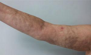 """Induration and """"orange peel"""" changes are observed in the right upper limb."""