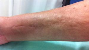 Longitudinal depression known as groove sign in the distal region of the right upper limb.