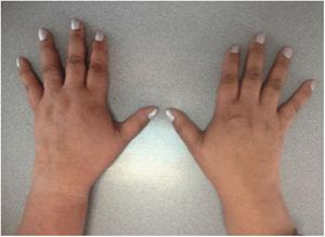 Photo of the patient's hands showing evidence of synovitis of the proximal interphalangeal joints, metacarpophalangeal joints and wrists.