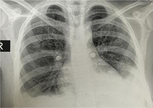 Chest X-ray: posteroanterior projection showing bilateral pleural effusions and an image suggestive of left basal consolidation.