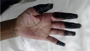 Ischemic–necrotic lesions in the distal zone of the 4 fingers of the left hand in a patient with cocaine/levamisole syndrome.