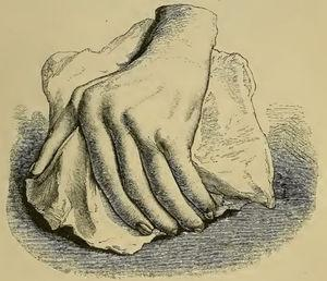 Illustration from Garrod's book depicting a deformed hand with ulnar deviation resulting from rheumatoid arthritis.1,2