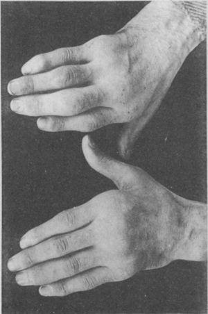 Photograph of the hands of a 35-year old patient with a history of gonococcal urethritis, who years later progressively developed polyarthritis of the small and large joints. Classified as proliferative arthritis.5,6