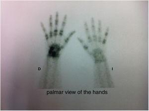 Bone scintigraphy of the hands with characteristic findings of psoriatic arthropathy2: asymmetric involvement, affection of distal interphalangeal joints and ray distribution (fifth finger of the left hand and third and fourth fingers of the right hand.).