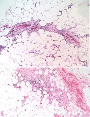 H-E. 40X. Hypodermis with presence of thrombi in small and medium-caliber vessels. (Courtesy of Dr. María Janeth Vargas Manrique, Pathology Service, Central Military Hospital.)