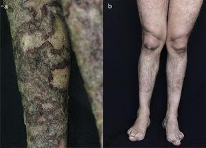 (a) In the lower extremities presents circumscribed erythematous plaques with layers of adherent dark brown and grayish scales, with erythematous edges raised with respect to the depressed center, (b) 10 years later there is an absence of cutaneous lesions.