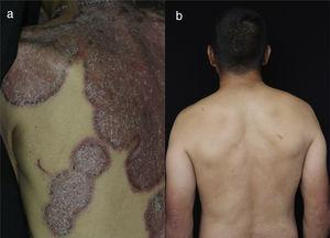 (a) On the dorsum presents erythematous, circumscribed, infiltrated plaques, with silvery scales, adherent and with raised edges with respect to the depressed center, (b) 10 years later there is an absence of cutaneous lesions.