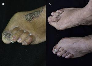 (a) In the left foot we can observe the nail of the thumb with subungual hyperkeratosis associated with onycholysis and yelowish chromonychia. In the nail of the third toe an oil drop spot is observed. Valgus deformity in the first and second toes. (b) 10 years later there is evidence of persistence of valgus deformity in the first toes of both feet, and also in the second toe of the left foot. Remarkable decrease in subungual hyperkeratosis, onycholysis and yellowish chromonychia is evident. Oil drop spots are no longer seen.
