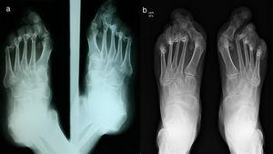 (a) Comparative foot X-ray, oblique projections: generalized diffuse osteopenia, degenerative changes of the metatarsophalangeal joints of all the toes with subluxation associated with valgus deformity, left calcaneal spur, mild degenerative changes of the joints of the forefoot with the midfoot. (b) Comparative foot X-ray, anteroposterior projections: generalized diffuse osteopenia, the changes described in the previous radiograph persist with progression thereof.