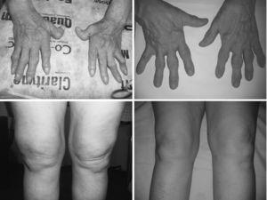 Left. Persistent synovitis in hands and knees in a patient with refractory adult onset Still's disease treated with prednisone and methotrexate. Right. Rapid responses after golimumab treatment.