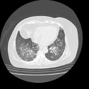 Chest tomography with contrast. There is a ground glass pattern with non-homogeneous distribution, with few centrilobular nodules, associated with traction, without formation of cavitations.