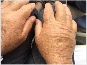 Illustrates bilateral oedema with fovea on the dorsum of hands, predominantly affecting the extensor tendons.