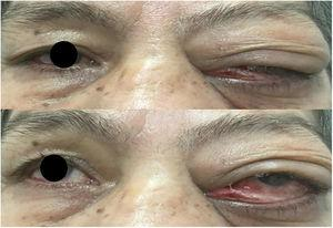 The left eye has a significant proptosis and blepharoptosis, with a space-occupying lesion in the upper half of the left orbit, conjunctival hyperaemia, conjunctivochalasis, mucoserous secretion.