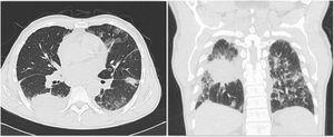 Chest CT depicting a loop in the right lower lobe, with extra-thoracic extension and neoplastic appearance. Thickening of the pleura and of the right lung fissures, with potential secondary involvement. Bilateral apical fibroatelectatic changes and calcified right apical mass. Bilateral interstitial lung disease.
