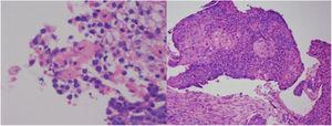 Lung biopsy, lower right lobe fragment. Keratining squamous cell carcinoma.