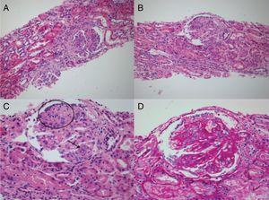 A and B) H-E 20× stain. Visible glomeruli with membranoproliferative pattern, with evidence of segmented lesions and their corresponding attachment to Bowman's capsule. Segmental destruction of the parietal epithelium and its glomerular capillary basement membrane. C) H-E 40×. Glomerulus with membranoproliferative changes, collapse (circle) with prominent visceral epithelium, with no evidence of patent capillary lumen. Presence of hematoxylin bodies (arrow) characteristic of lupus nephropathy, with cariorexys. D) Periodic acid-Schiff staining 40×. The same glomerulus described in C, with notable thickening of the glomerular capillary basement membranes with double contours and the presence of subendothelial deposits.