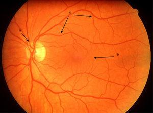 Clinical retinal photography image showing the normal appearance of the retina with the following structures: (a) optic disc, (b) macular area (responsible for the central 30 degrees of vision and (c) retinal blood vessels.